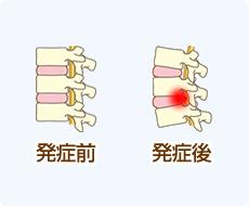 脊柱管狭窄症・ヘルニア