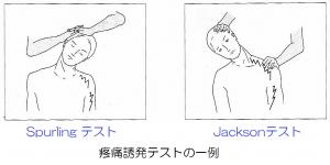 首の疼痛誘発テストの例