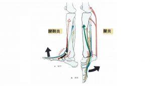腱鞘炎と腱炎