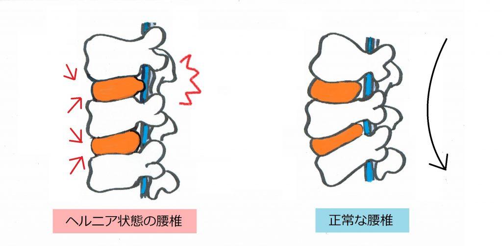 ヘルニアの腰椎と正常な腰椎