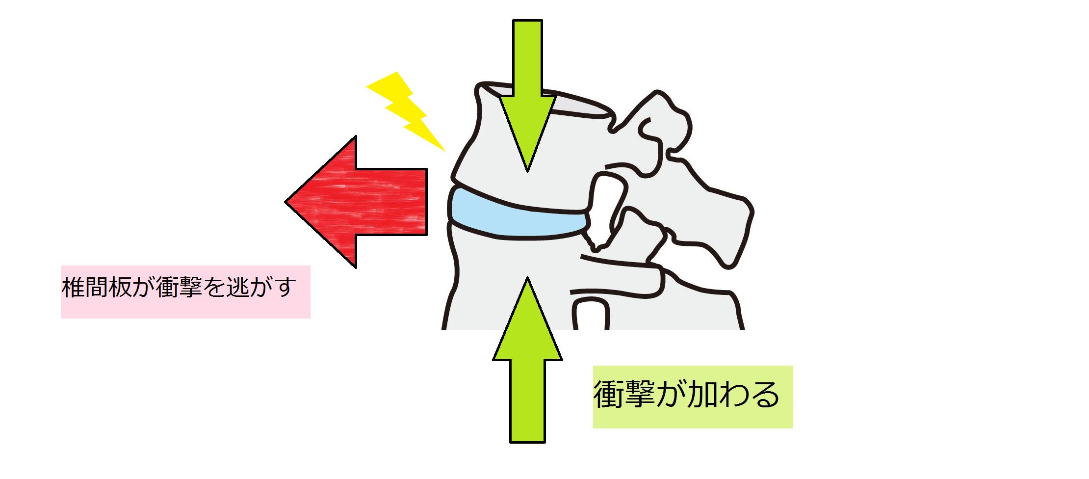 椎間板が衝撃を逃がす図